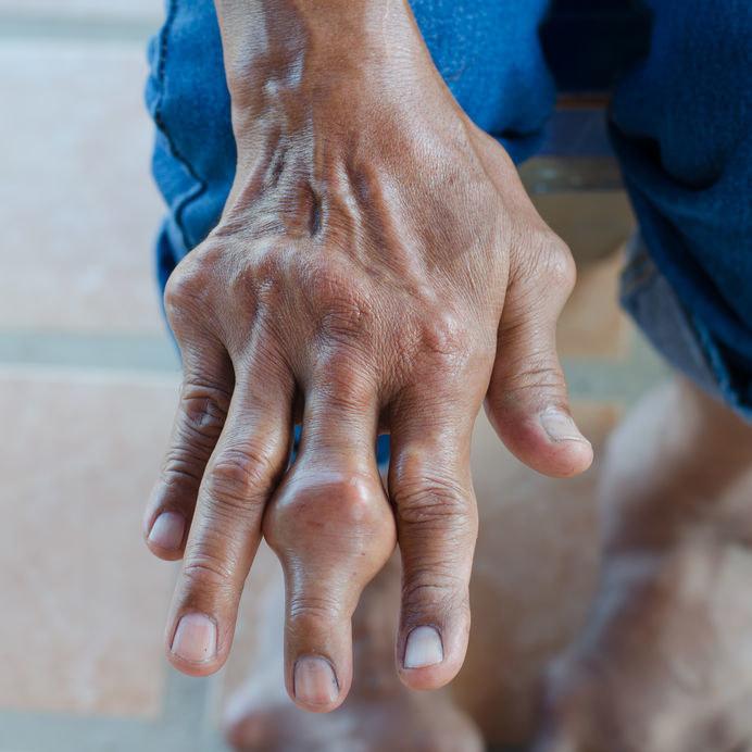 Objawy dny moczanowej /©123RF/PICSEL