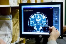 Objawy neurologiczne i psychiczne pod COVID-19. Nowe badania