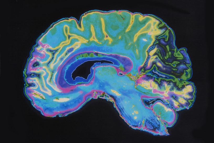 Objawy neurologiczne występują u około połowy osób hospitalizowanych z powodu COVID-19 /123RF/PICSEL