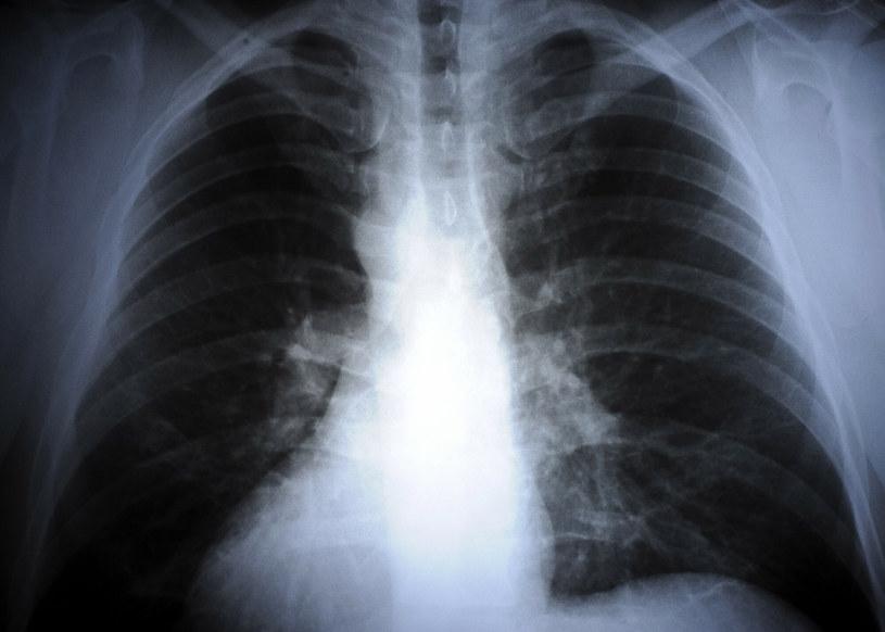 Objawy schorzeń układu oddechowego u Polaków nasilają się zimą /DONAT BRYKCZYNSKI / REPORTER /East News