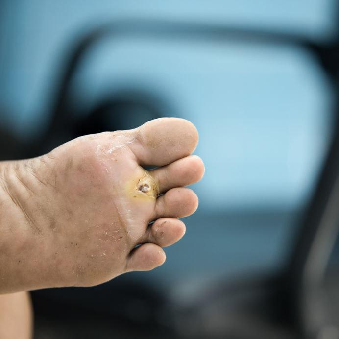 Objawy stopy cukrzycowej /©123RF/PICSEL