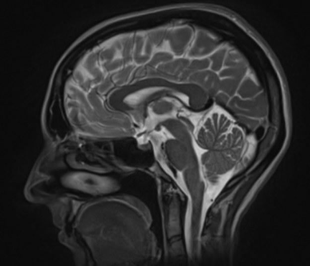 Obraz głowy otrzymany w badaniu z pomocą rezonansu magnetycznego /Krakowski Szpital Specjalistyczny im. Jana Pawła II /