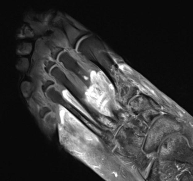 Obraz NMR stopy pacjenta w ciężkim przebiegu Covid-19. Szary obszar to tkanki objęte martwicą. /Northwestern University /Materiały prasowe