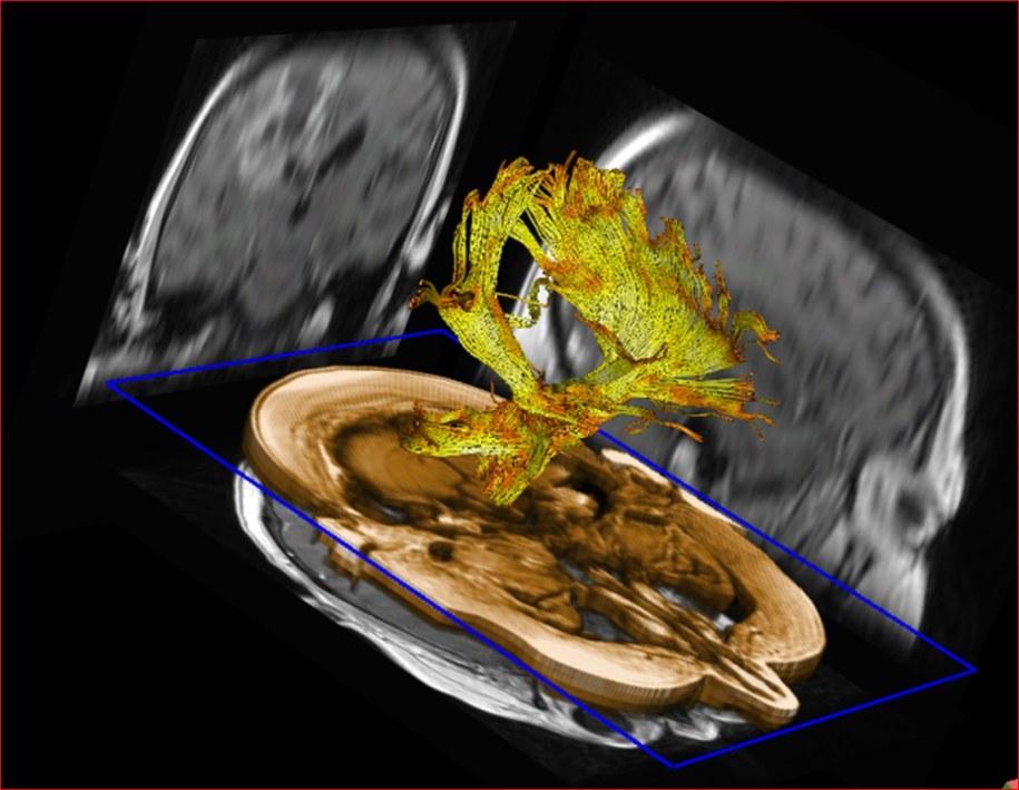 Obraz przebiegu włókien nerwowych w mózgu, uzyskany z pomocą aparatury rezonansu magnetycznego /Krakowski Szpital Specjalistyczny im. Jana Pawła II /
