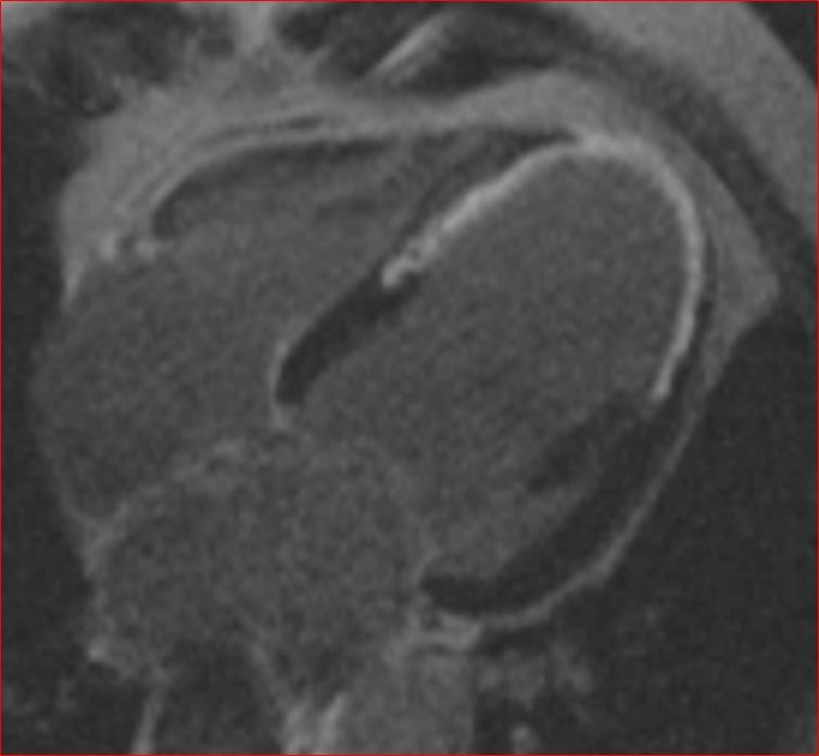 Obraz serca uzyskany z pomocą aparatury rezonansu magnetycznego /Krakowski Szpital Specjalistyczny im. Jana Pawła II /