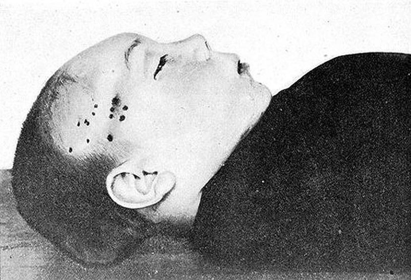 Obrażenia na głowie dziecka miały stanowić dowód, że modru dokonali Żydzi /YouTube