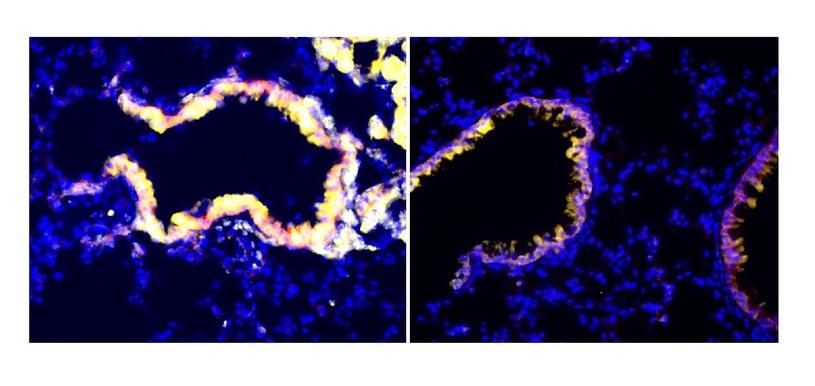 Obrazy immunofluorescencyjne płuc poddanych działaniu promieniowania (po lewej) lub bez promieniowania (po prawej). Oskrzelikowe komórki maczugowate wydzielają więcej czynników antyimmunosupresyjnych po napromieniowaniu, co widać po wzroście markera CC10 (żółty).