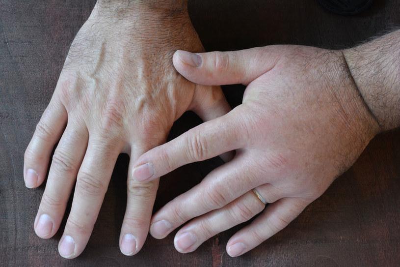 Obrzęki na dłoniach /©123RF/PICSEL