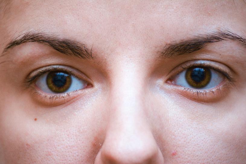 Obrzęki oczu i twarzy są następstwem zatrzymywania wody w organizmie. /123RF/PICSEL
