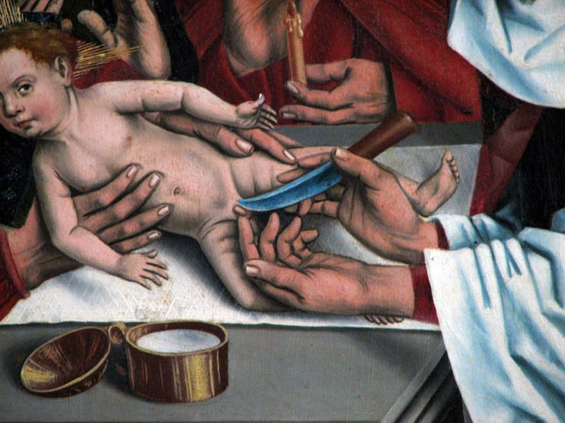 Obrzezanie Jezusa Chrystusa. Autor: Friedrich Herlin /Wikimedia Commons /domena publiczna
