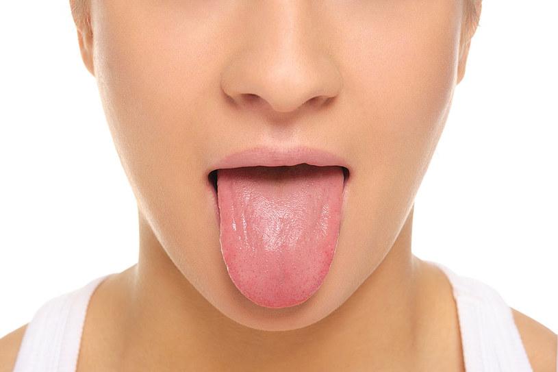 Obserwuj jamę ustną. W przypadku białego nalotu i nieprzyjemnego zapachu z ust niezbędne jest wykorzystanie środków odkażających i łagodzących ból /123RF/PICSEL