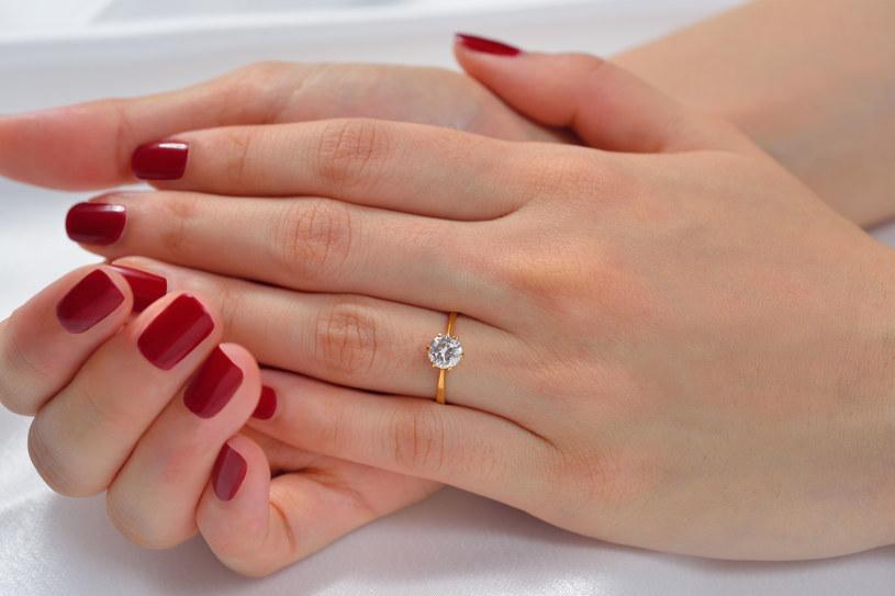 Obserwuj swoje dłonie. Możesz z nich wyczytać wiele zagrażających twojemu zdrowiu dolegliwości /123RF/PICSEL
