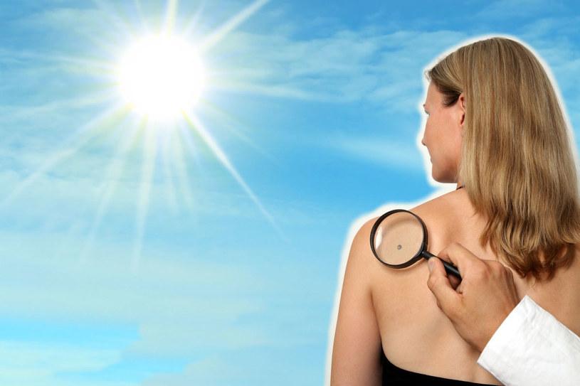 Oceniając podejrzane znamię na skórze, lekarz posługuje się specjalną skalą /123RF/PICSEL