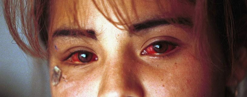 Oczy czternastolatki zaatakowanej w Cuidad Juarez /Getty Images