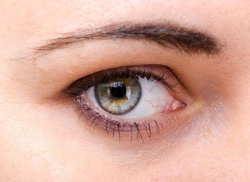 Oczy mówią wiele o naszym zdrowiu /123RF/PICSEL