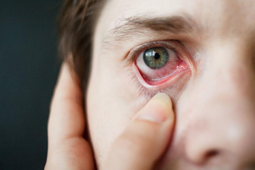 Oczy są szczególnie wrażliwe na działanie i przenikanie zarazków /123RF/PICSEL