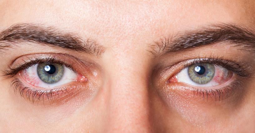 Oczy też trzeba chronić przed działaniem światła słonecznego /123RF/PICSEL