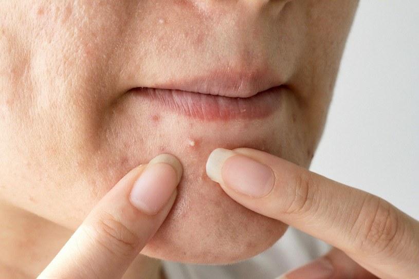 Oczyszczanie skóry to podstawa pielęgnacji /123RF/PICSEL