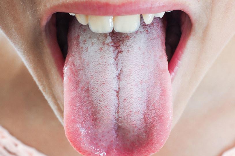 Odcień blady może świadczyć o niedoborze żelaza, anemii, odwodnieniu /123RF/PICSEL