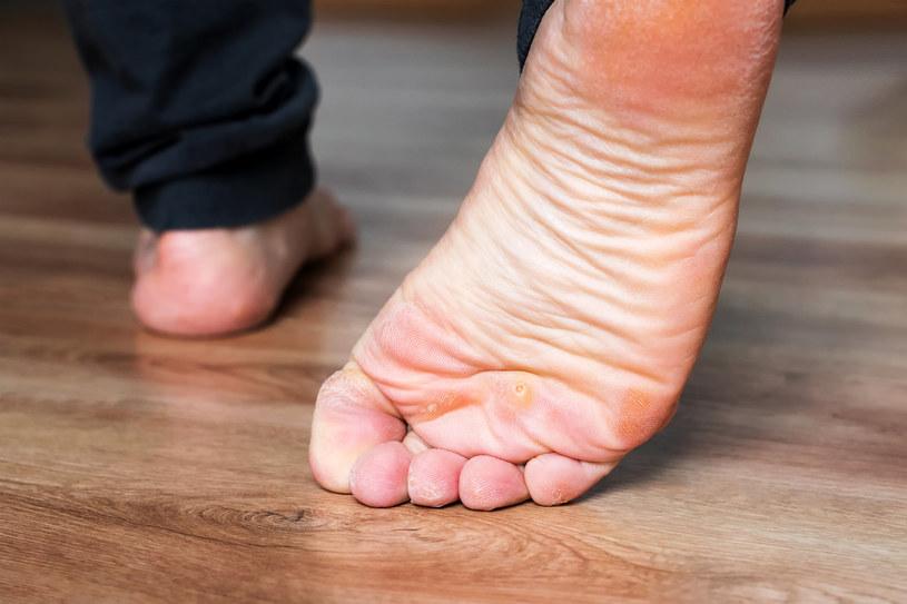 Odciski na stopach są bardzo bolesne i często utrudniają swobodne poruszanie się /123RF/PICSEL