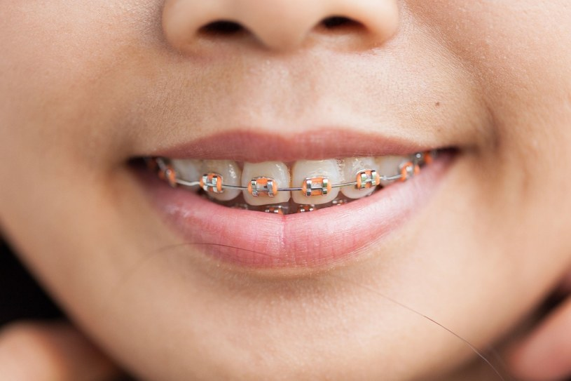Odpowiednia higiena jamy ustnej jest bardzo istotna, zwłaszcza u osób posiadających aparat ortodontyczny /123RF/PICSEL