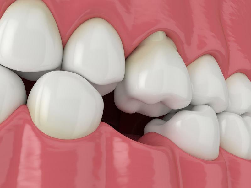 Odsłonięty kanalik zębowy /123RF/PICSEL