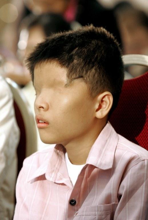 Ofiary Agent Orange cierpią w Wietnamie do dziś /AFP