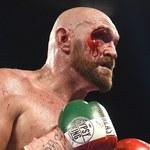 Ogłasza, że Tyson Fury został ciężko znokautowany. I wskazał przez kogo