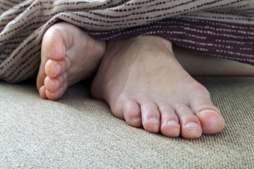 Okazuje się,  że dłonie, kolana i stopy to najbardziej kłopotliwe części ciała. Na zdjęciach zazwyczaj nie prezentują się korzystnie /123RF/PICSEL