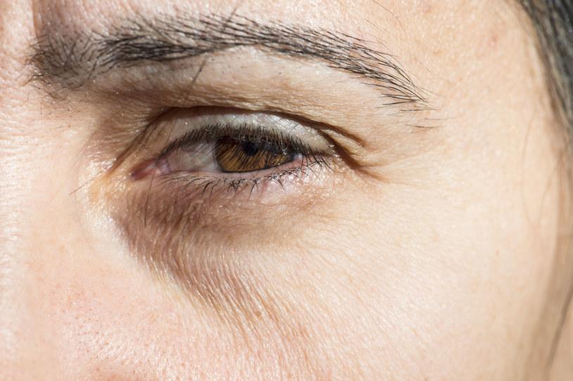Okłady pomogą na opuchnięte oczy /123RF/PICSEL