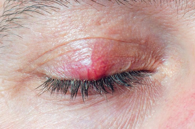 Okolica oczu jest bardzo podatna na infekcje bakteryjne /123RF/PICSEL