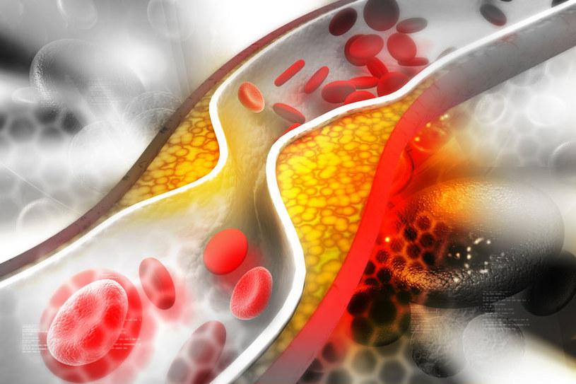 Olej a cholesterol /©123RF/PICSEL