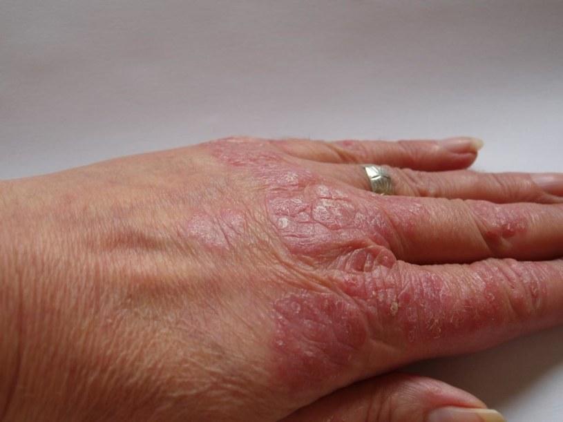 Olej z migdałów na choroby skóry /© Photogenica