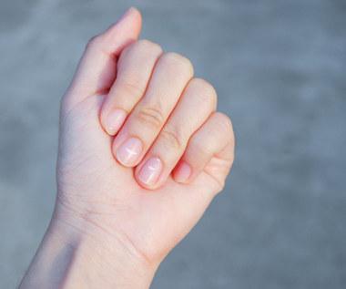 Onycholiza: Przyczyny, objawy i leczenie