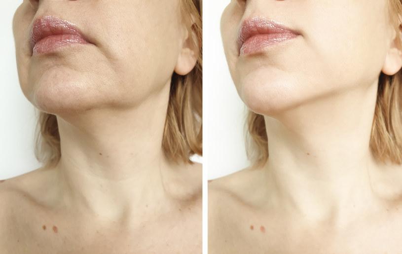 Opadający owal twarzy mozna poprawić domowym sposobem /123RF/PICSEL