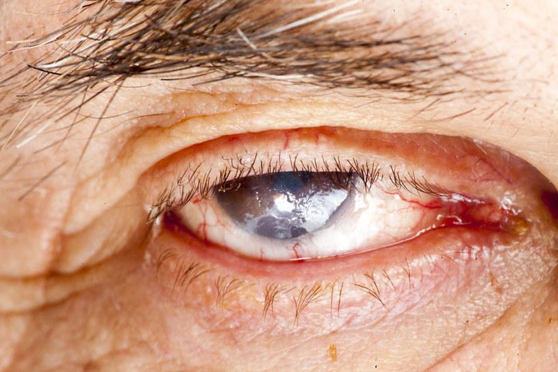Operacja usunięcia zaćmy nie tylko poprawia ostrość widzenia /123RF/PICSEL