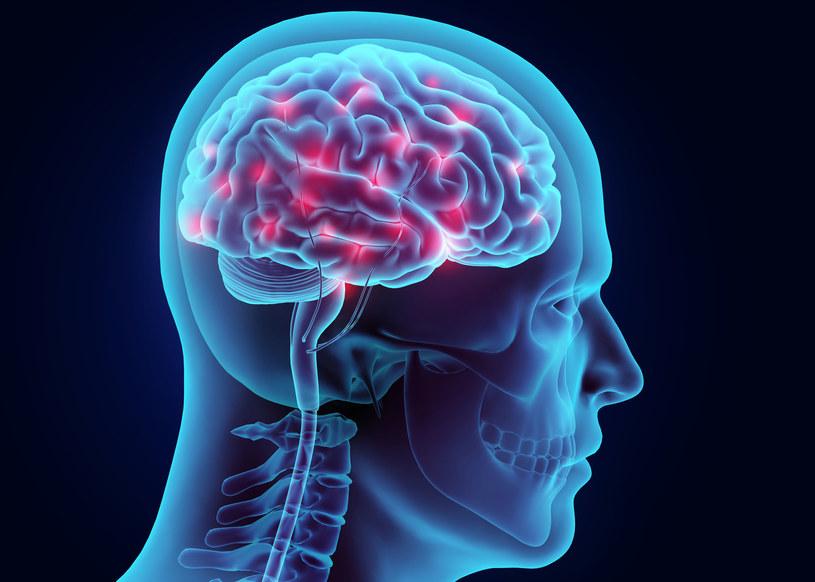 Opracowano nowy sposób diagnozowania przepływu krwi w mózgu /123RF/PICSEL