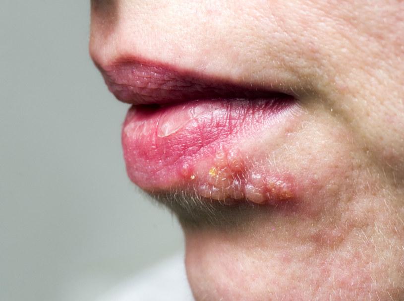 Opryszczka może pojawić się nie tylko na ustach /123RF/PICSEL