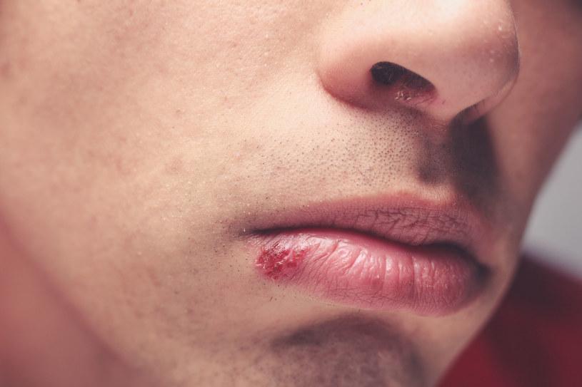 Opryszczka to problem dotykający zarówno kobiet, jak i mężczyzn. /123RF/PICSEL