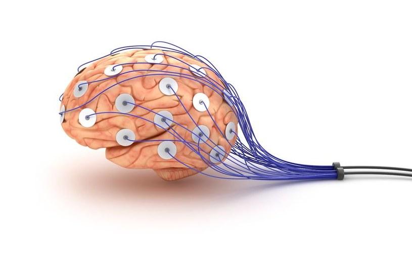 Optogenetyka umożliwia wyłączenie poszczególnych neuronów przy pomocy światła /123RF/PICSEL