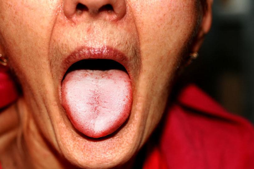 Opuchlizna języka /©123RF/PICSEL