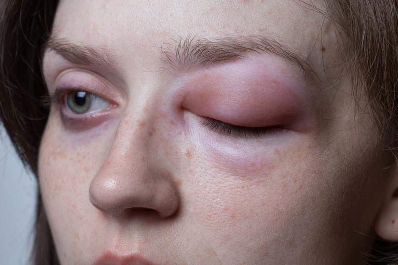 Opuchlizna w okolicach twarzy to prawdopodobnie objaw raka płuc /123RF/PICSEL