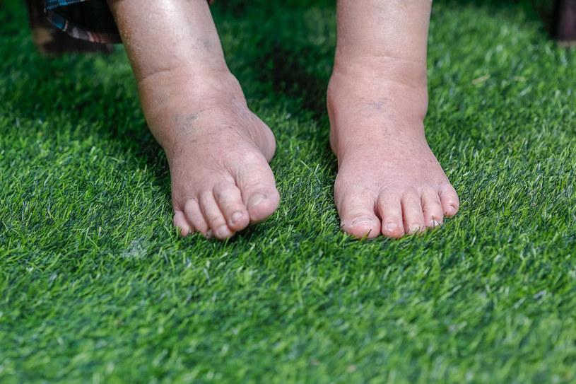 Opuchnięte nogi /©123RF/PICSEL