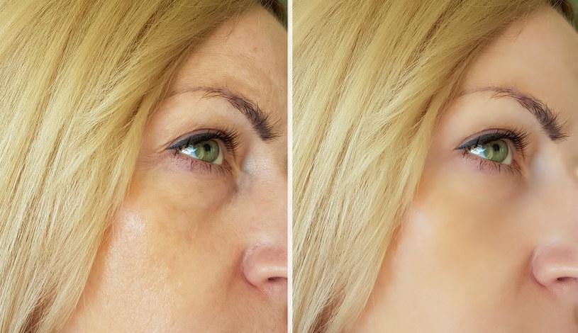 Opuchnięte oczy to powszechny problem /123RF/PICSEL