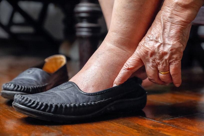 Opuchnięte ręce i stopy, ból stawów. Dla chorych na akromegalię to codzienność /123RF/PICSEL