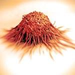 Organizm człowieka każdego dnia zabija prekursory nowotworów