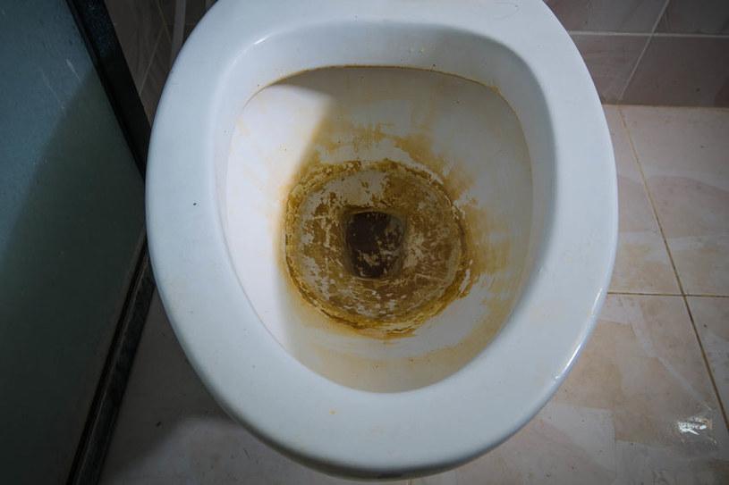 Osad w toalecie /©123RF/PICSEL