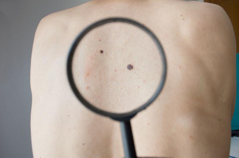 Osoby po przeszczepach są bardziej narażone na ryzyko wystąpienia czerniaka /123RF/PICSEL