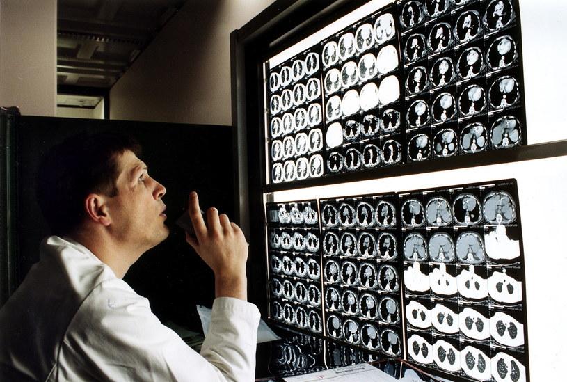 Osoby uczulone na jod nie powinny poddawać się badaniu tomografii komputerowej z wykorzystaniem kontrastu. /Getty Images