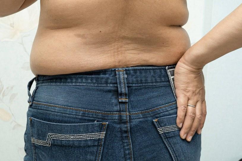 Osoby z otyłością brzuszną dużo ciężej przechodzą choroby, w tym COVID-19 /123RF/PICSEL
